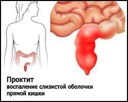 Проктит — симптомы и лечение
