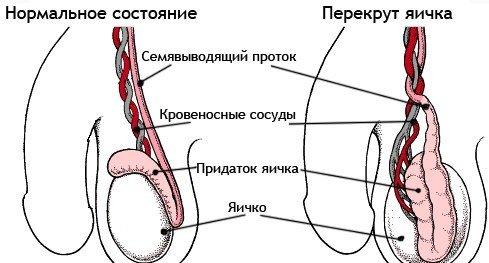 Перекрут яичка — симптомы и лечение