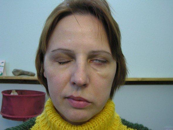 Парез лицевого нерва — симптомы и лечение