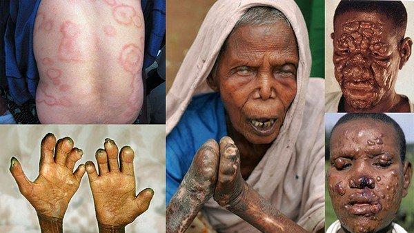 Лепра — симптомы и лечение