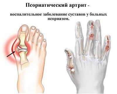 Псориатический артрит — симптомы и лечение