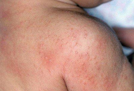 Аскаридоз — симптомы и лечение