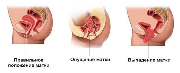 Выпадение матки — симптомы и лечение