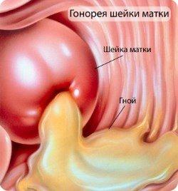 Гонорея: симптомы и лечение