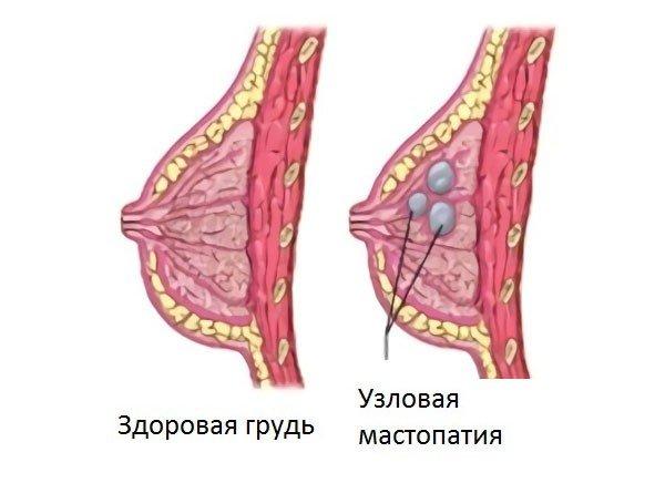 Узловая мастопатия — симптомы и лечение