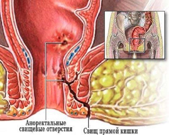 Свищ прямой кишки — симптомы и лечение