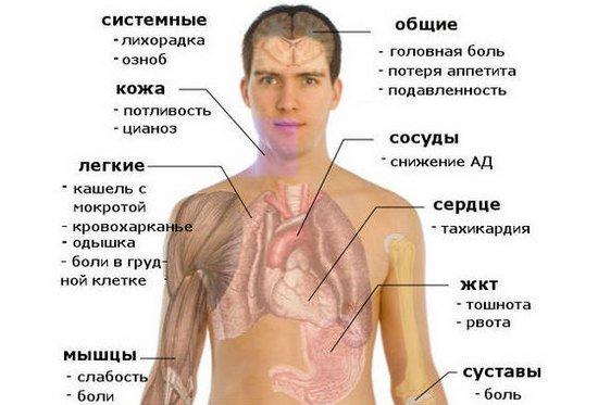 Левосторонняя пневмония — симптомы и лечение