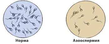 Азооспермия — симптомы и лечение