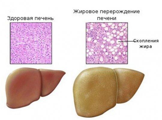 Стеатоз — симптомы и лечение