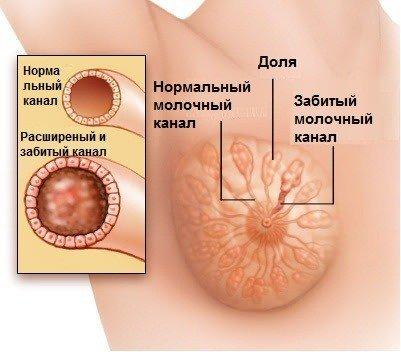 Лактостаз — симптомы и лечение