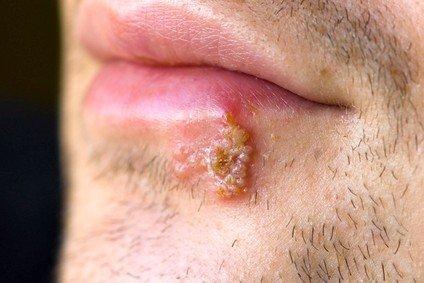 Герпес на губах — симптомы и лечение