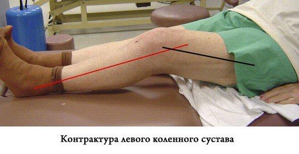 Контрактура коленного сустава — симптомы и лечение