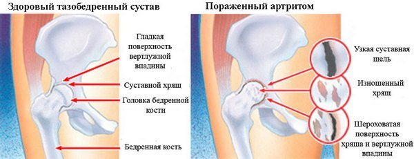 Артрит тазобедренного сустава — симптомы и лечение