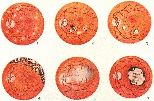Хориоретинит — симптомы и лечение
