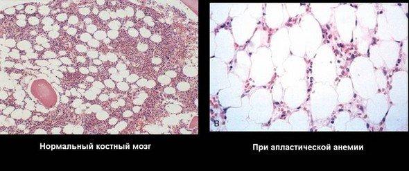 Апластическая анемия — симптомы и лечение
