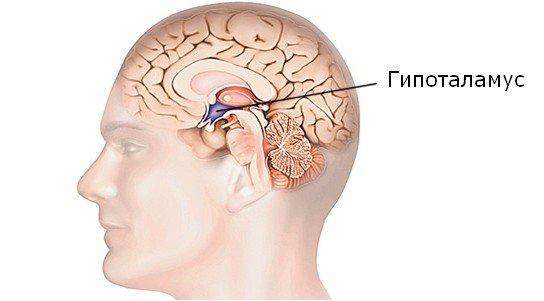 Гипоталамический синдром — симптомы и лечение