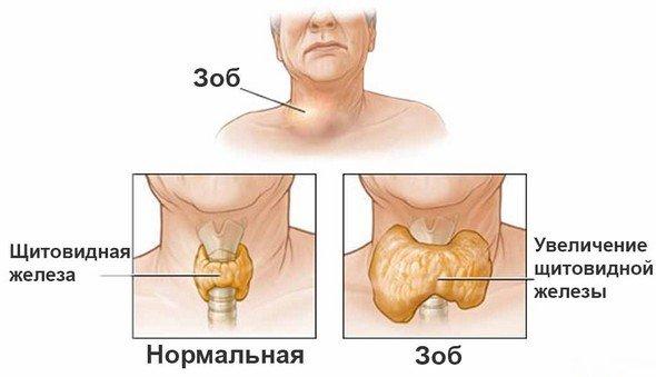 Диффузный токсический зоб — симптомы и лечение
