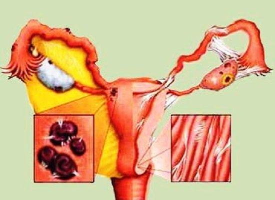 Эндометриоз — симптомы и лечение