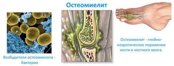 Острый остеомиелит — симптомы и лечение