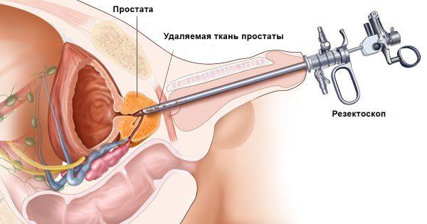 Аденома простаты - симптомы и лечение, фото и видео.