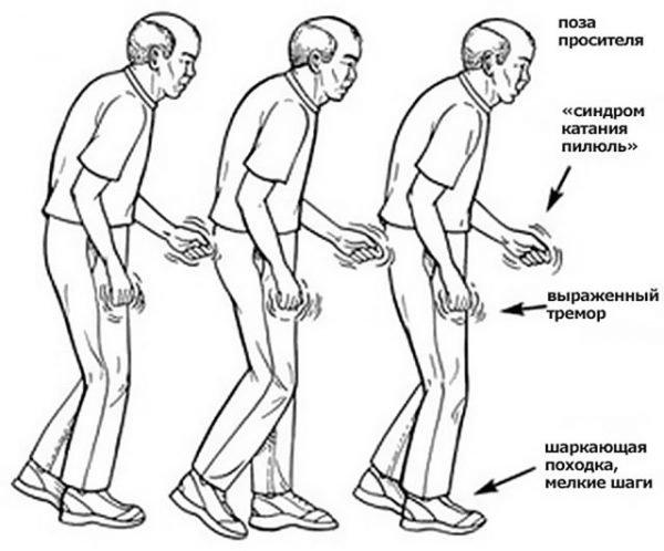 Болезнь Паркинсона: особенности проявления заболевания при рассмотрении положения тела.