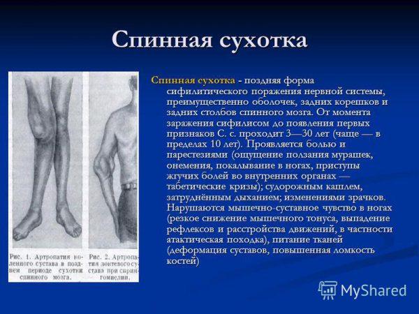 Спинная сухотка - симптомы и лечение, фото и видео.