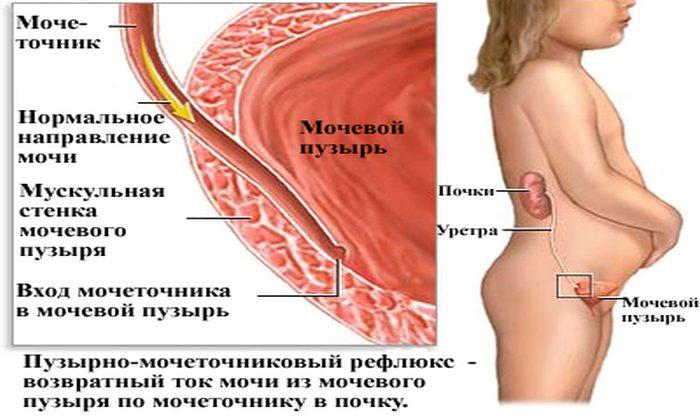 Пузырно-мочеточниковый рефлюкс — симптомы и лечение, фото и видео