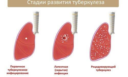 Туберкулез легких — симптомы и лечение