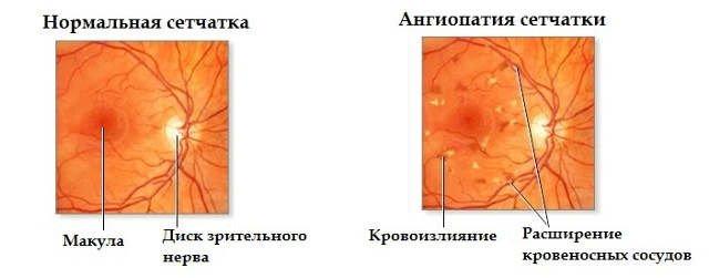 Ангиопатия сетчатки глаза — симптомы и лечение