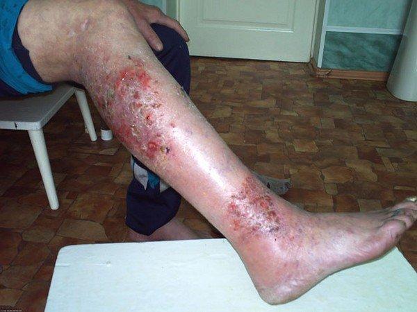 Микробная экзема — симптомы и лечение