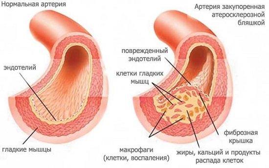 Атеросклероз — симптомы и лечение