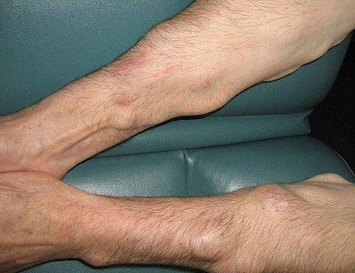 Липоматоз — симптомы и лечение, фото и видео