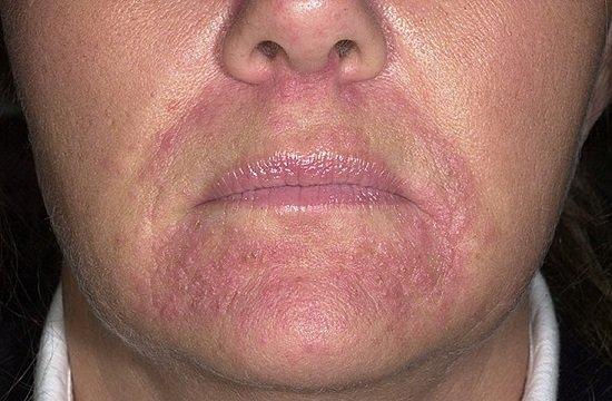 Периоральный дерматит — симптомы и лечение