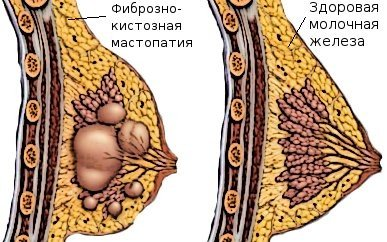 Фиброзно-кистозная мастопатия: симптомы и лечение
