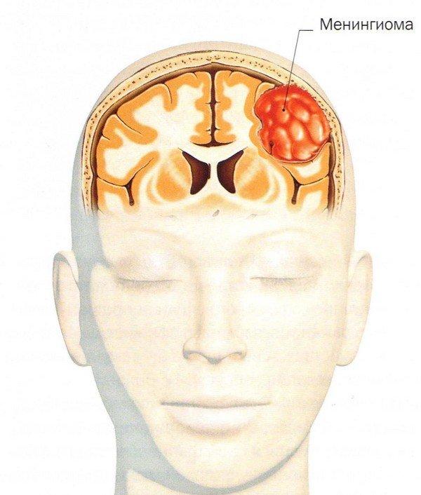 Опухоль головного мозга — симптомы и лечение
