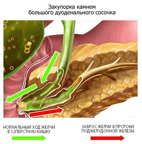 Билиарный панкреатит — симптомы и лечение