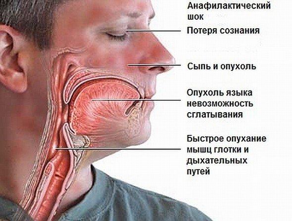 Анафилактический шок — симптомы и лечение