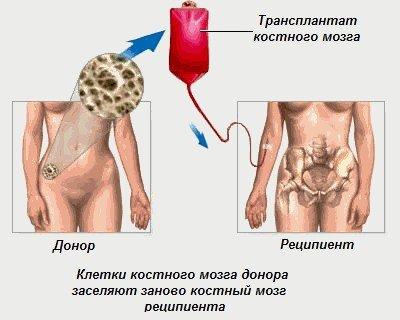 Остеомиелофиброз — симптомы и лечение