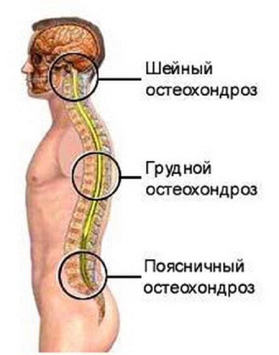 Поясничный остеохондроз — симптомы и лечение