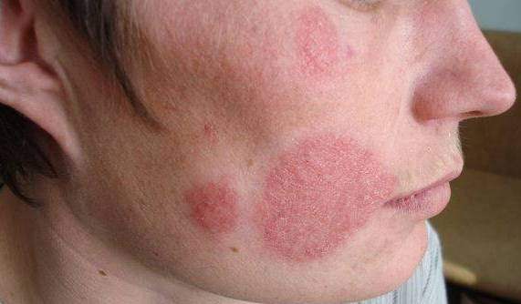 Микоз — симптомы и лечение