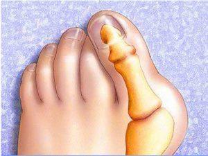 Лечение косточки на ноге, пальцах и пятке народными средствами