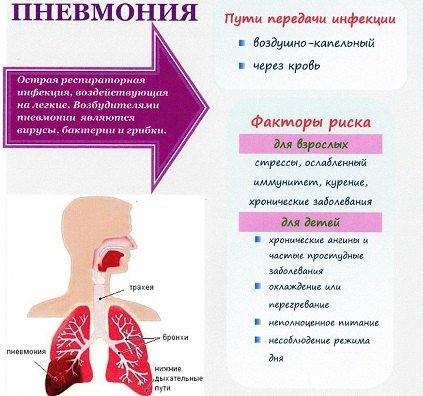 Правосторонняя пневмония — симптомы и лечение