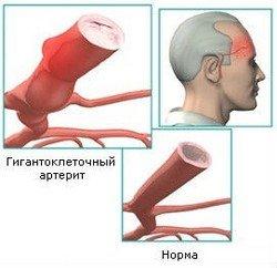 Болезнь Хортона височный артериит — симптомы и лечение