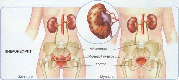 Воспаление почек — симптомы и лечение