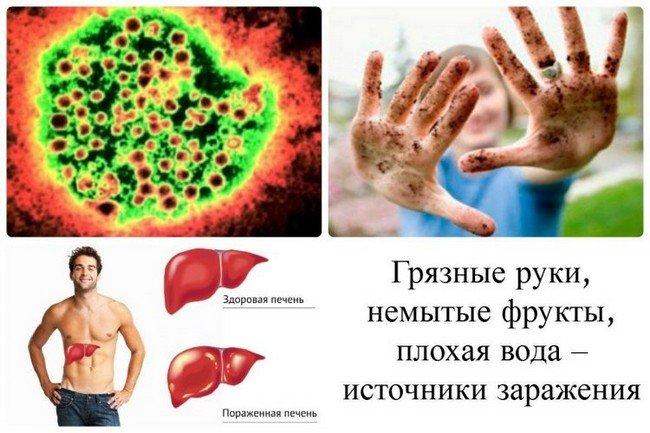 Гепатит Е — симптомы и лечение, фото и видео