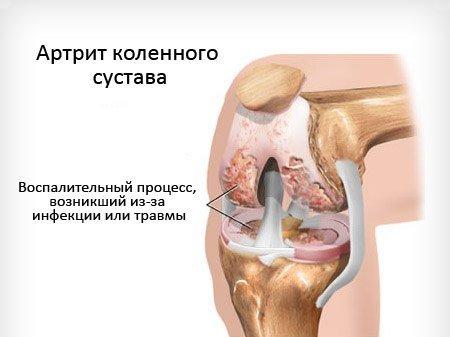 Гнойный артрит — симптомы и лечение