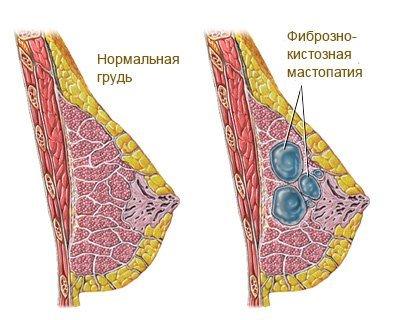 Фиброз — симптомы и лечение
