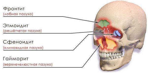 Хронический синусит — симптомы и лечение