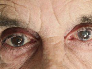 Лечение катаракты народными средствами без операции