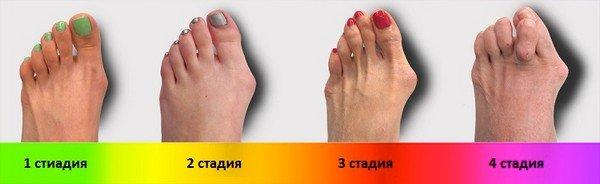 Поперечное плоскостопие — симптомы и лечение